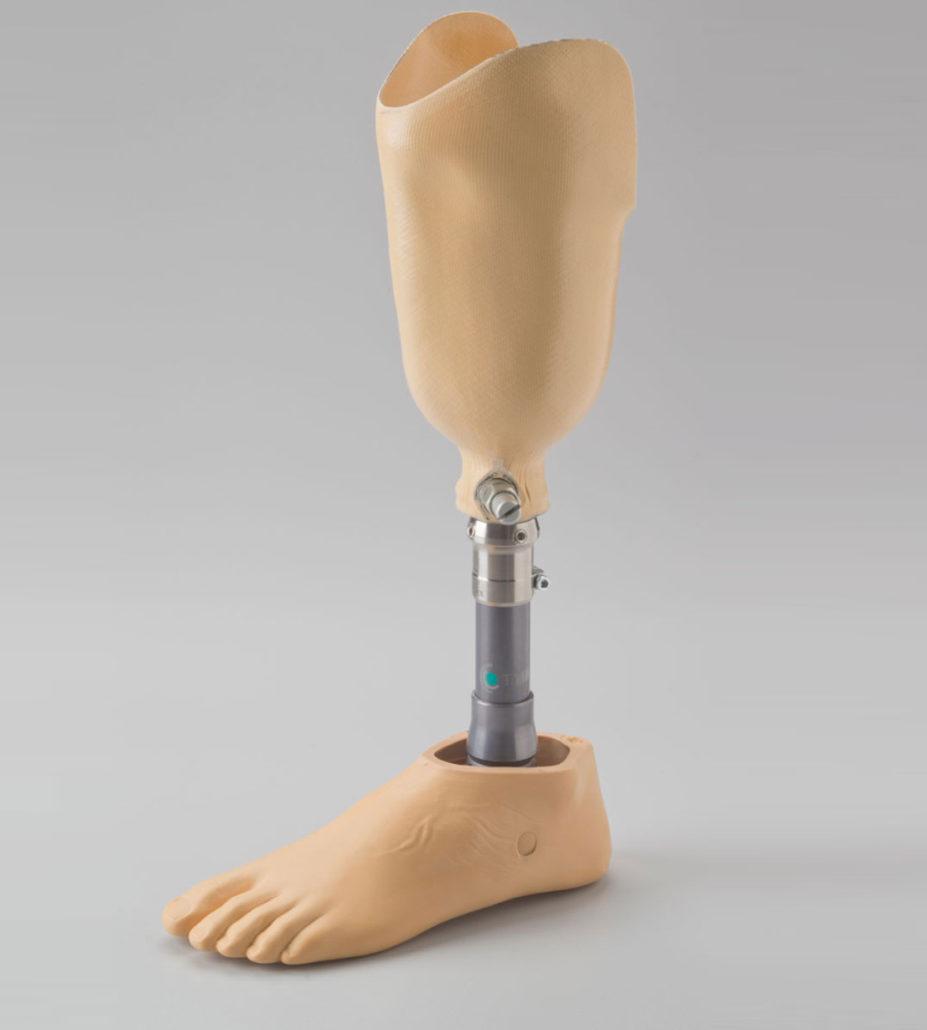 Unterschenkelprothese Massanfertigung