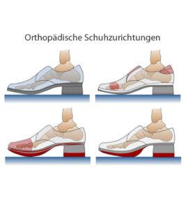 Schuhtechnik Schuhabänderung